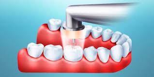 Все о лазерной стоматологии